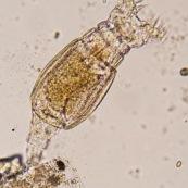 RotifËre observÈe au microscope. Ses deux couronnes de cils servent ‡ aspirer les micro-organisame pous la digestion. Microscopie optique.Micro-organisme pluricellulaire aquatique, elle est acrochÈe ‡ quelques dÈbris vÈgÈtaux.  Embranchement : Rotifera.