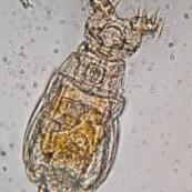 Rotifère observée au microscope. Ses deux couronnes de cils servent à aspirer les micro-organismes pour la digestion. Micro-organisme pluricellulaire aquatique.   Microscopie optique.   Taille : 0,5mm de long.   Embranchement : Rotifera.