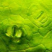 Stomate sur feuille de Nepenthes (microscopie)